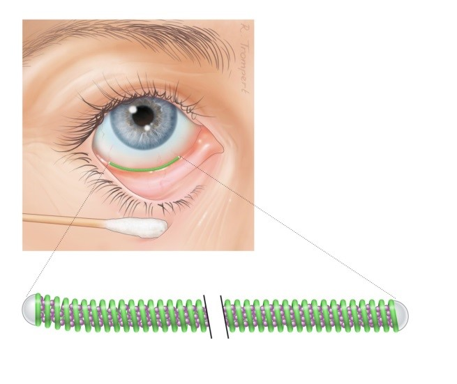Design of the Ocular Coil
