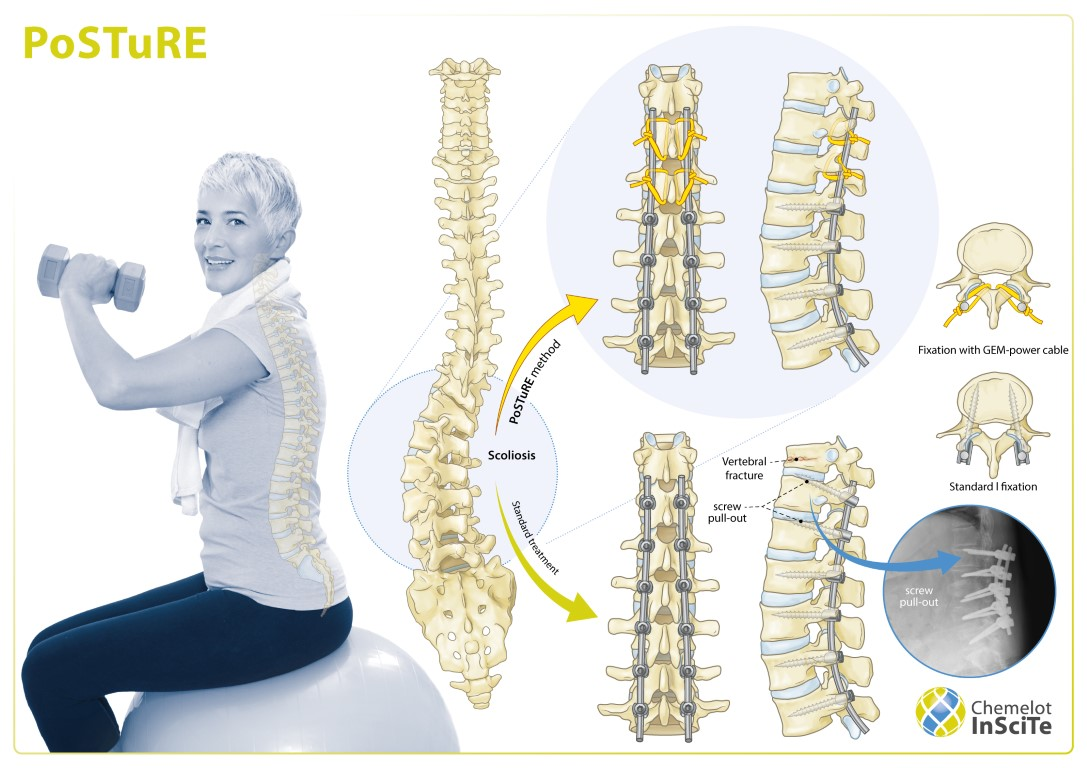 PoSTuRE new surgical method for treatment scoliosis